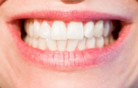 יתרונות השתלות שיניים ביום אחד